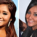 Snooki before and after nose job