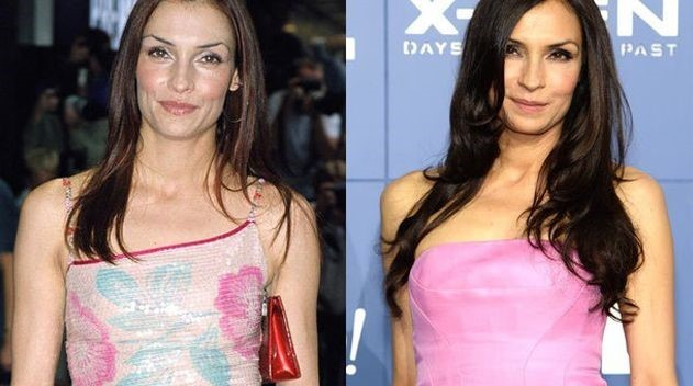 Famke Janssen before and afterusing botox injections