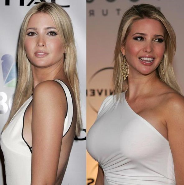 After Before Boob Celebrity Job