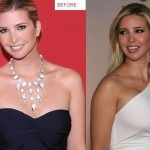 Ivanka Trump before and after breast augmentation 01