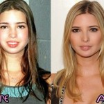 Ivanka Trump before and after plastic surgery 2
