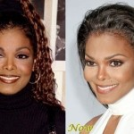 Janet Jackson before and after plastic surgery 05