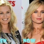 Rebecca Romijn before and after plastic surgery 02