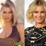 Rebecca Romijn before and after plastic surgery 03