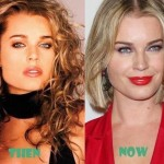 Rebecca Romijn before and after plastic surgery