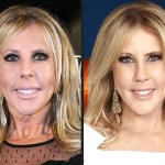 Vicki Gunvalson before and after plastic surgery 03
