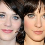 Zooey Deschanel before and after eyelid surgery
