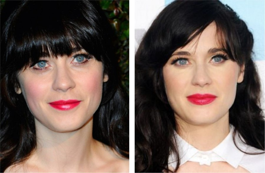 Zooey Deschanel Before And After Plastic Surgery 03