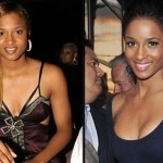 Ciara before and after breast augmentation