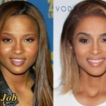 Ciara before and after nose job 03