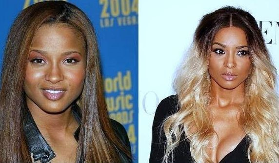 Ciara before and after nose job and breast augmentation