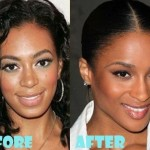 Ciara before and after plastic surgery