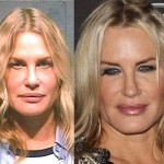 Daryl Hannah before and after plastic surgery 02