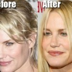 Daryl Hannah before and after plastic surgery 04