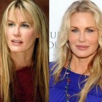 Daryl Hannah before and after plastic surgery 05
