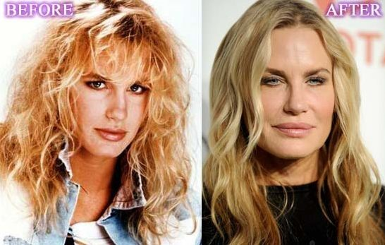Daryl Hannah Before And After Plastic Surgery 06