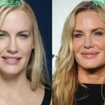 Daryl Hannah before and after plastic surgery 07