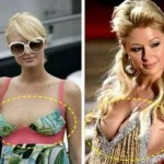Paris Hilton before and after breast augmentation