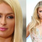 Paris Hilton before and after plastic surgery 01