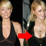 Paris Hilton plastic surgery breast augmentation