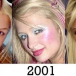 Paris Hiltonplastic surgery transformations