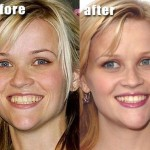 Reese Witherspoon before and after plastic surgery 05