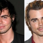 Reid Ewing before and after plastic surgery 03