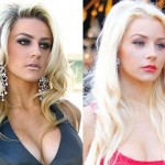 Courtney Stodden before and afterbotox injections 04