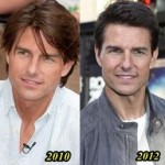 Tom Cruise Plastic Surgery - younger day by day