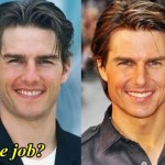Tom Cruise before and after nose job