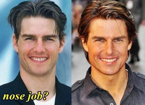 Tom Cruise Before And After Nose Job Celebrity Plastic