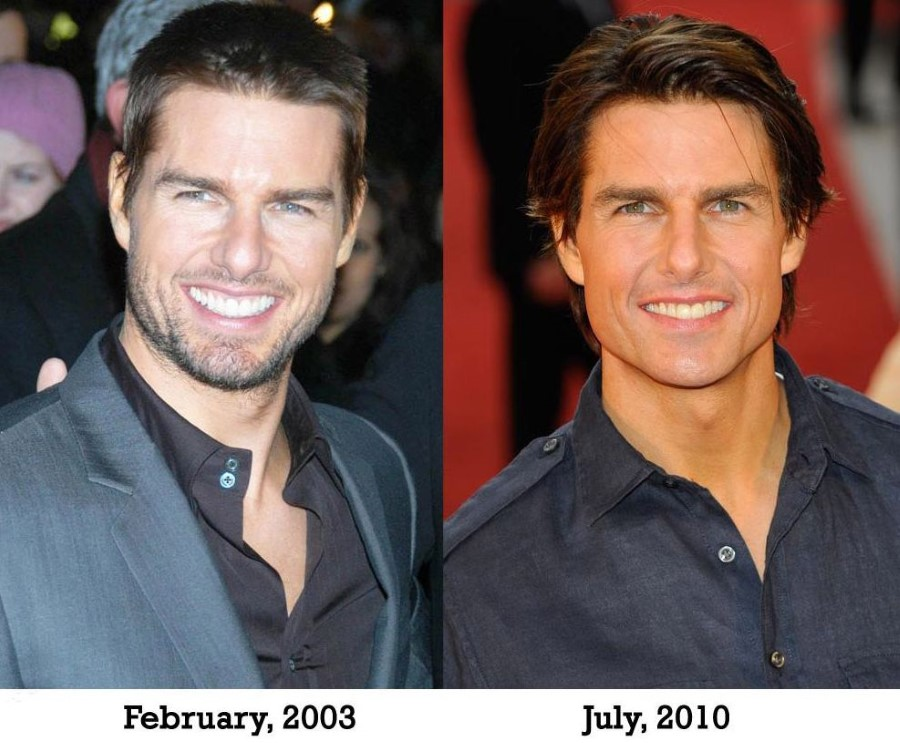 Tom Cruise before and after plastic surgery