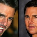 Tom Cruise before and after plastic surgery 02