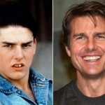 Tom Cruise before and after plastic surgery 03