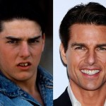 Tom Cruise before and after plastic surgery 04