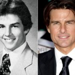 Tom Cruise before and after plastic surgery 05