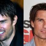 Tom Cruise before and after plastic surgery 06