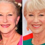 Helen Mirren after and before plastic surgery
