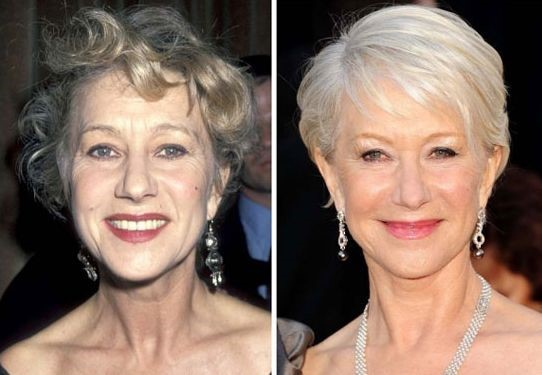 Helen Mirren before and after plastic surgery
