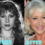 Helen Mirren before and after plastic surgery 03