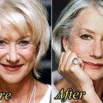 Helen Mirren before and after plastic surgery 04