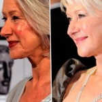 Helen Mirren before and after plastic surgery 06