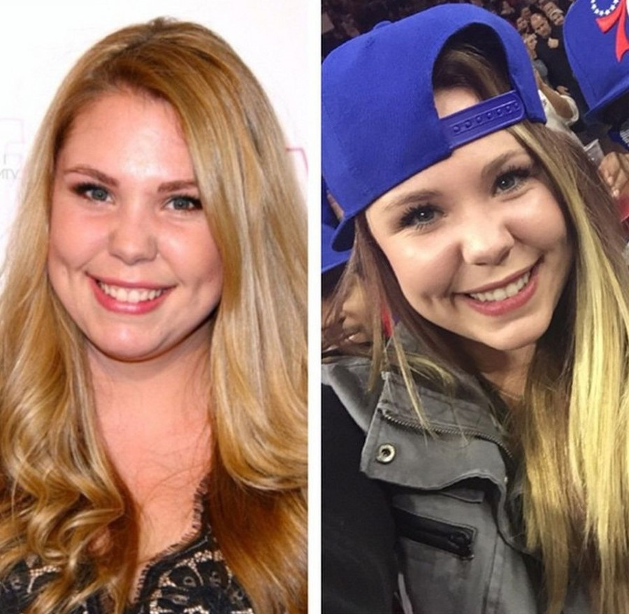 Kailyn Lowry plastic surgery 08