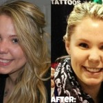 Kailyn-Lowry-plastic-surgery-11
