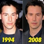 Keanu Reeves before and after plastic surgery