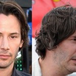 Keanu Reeves before and after plastic surgery 03