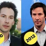 Keanu Reeves before and after plastic surgery 04