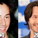 Keanu Reeves before and after plastic surgery 05