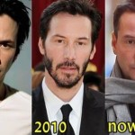 Keanu Reeves plastic surgery - then and now
