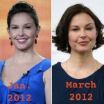 Ashley Judd before and after Plastic Surgery (14)